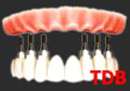 teeth-in-an-hour : 6 NobelReplace Groovy + 10 unit Procera Zirconia framework + NobelRondo porcelain