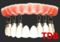 teeth-in-an-hour : 8 NobelReplace Groovy + 10 unit Procera Zirconia framework + NobelRondo porcelain